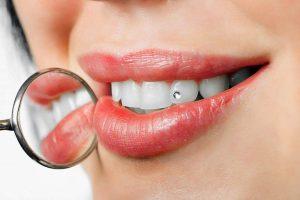 zobni nakit